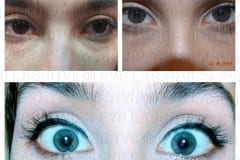 EYE COLOR CHANGE RESULTS
